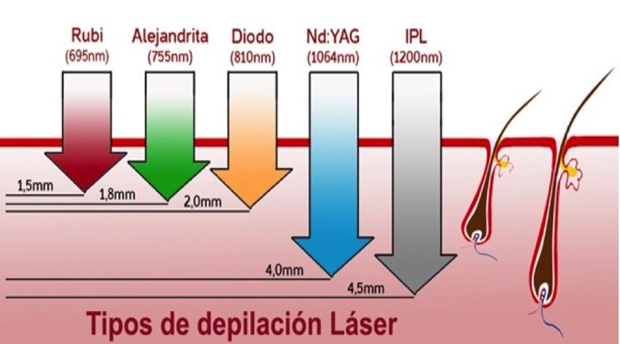 depilacion laser alejandrita o diodo